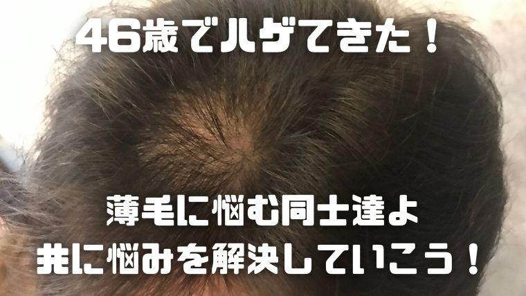 薄毛対策_アイキャッチ