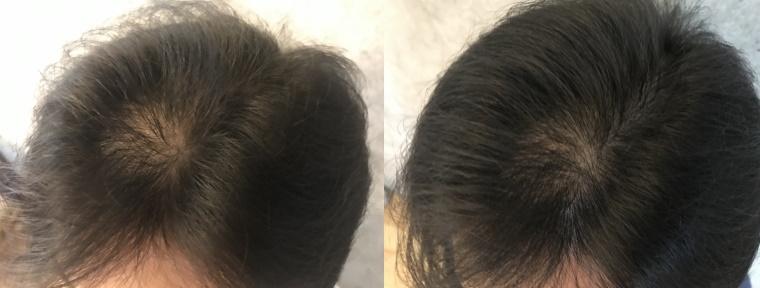 20210812_ドライヤーの効果_初期と約2週間後の頭髪状態比較