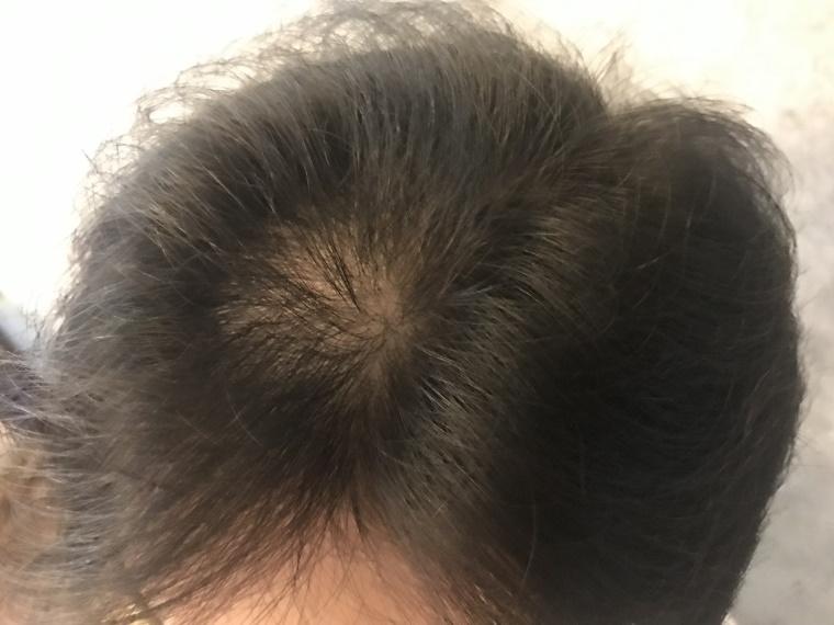 20210728_最初の頭髪状態
