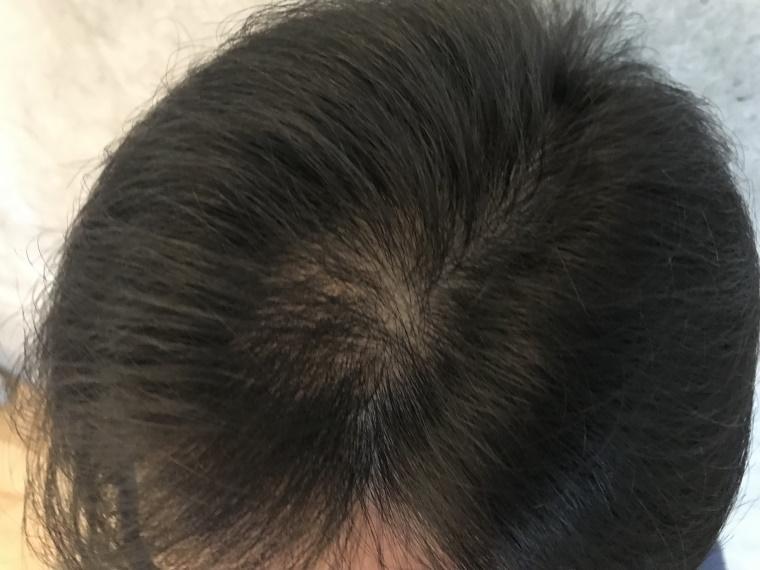 20210812_約2週間後の頭髪状態