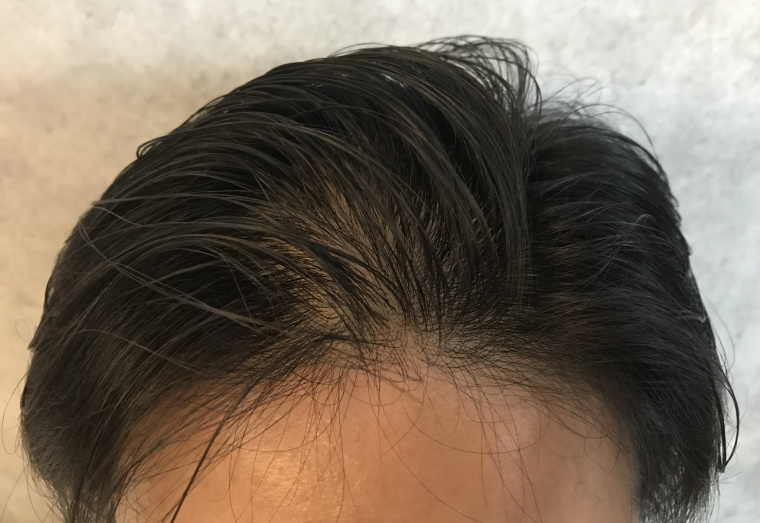 スカルプDメディカルミノキ5:塗布後の髪型_10分自然乾燥_正面