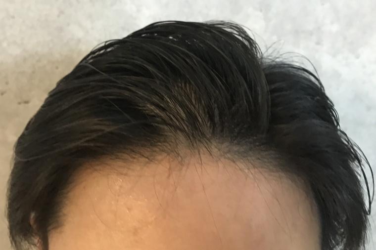 スカルプDメディカルミノキ5:塗布後の髪型_ヘアブラシで軽く髪型を整える_正面
