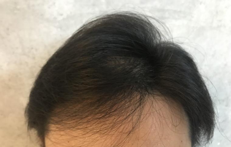 スカルプDメディカルミノキ5:塗布後の髪型_ドライヤーで乾かす_正面