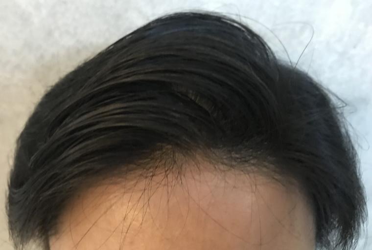 スカルプDメディカルミノキ5:塗布後の髪型_もう一度ヘアブラシで整える_正面