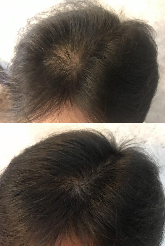 20210926_初期の頭髪状態_4週間後と比較