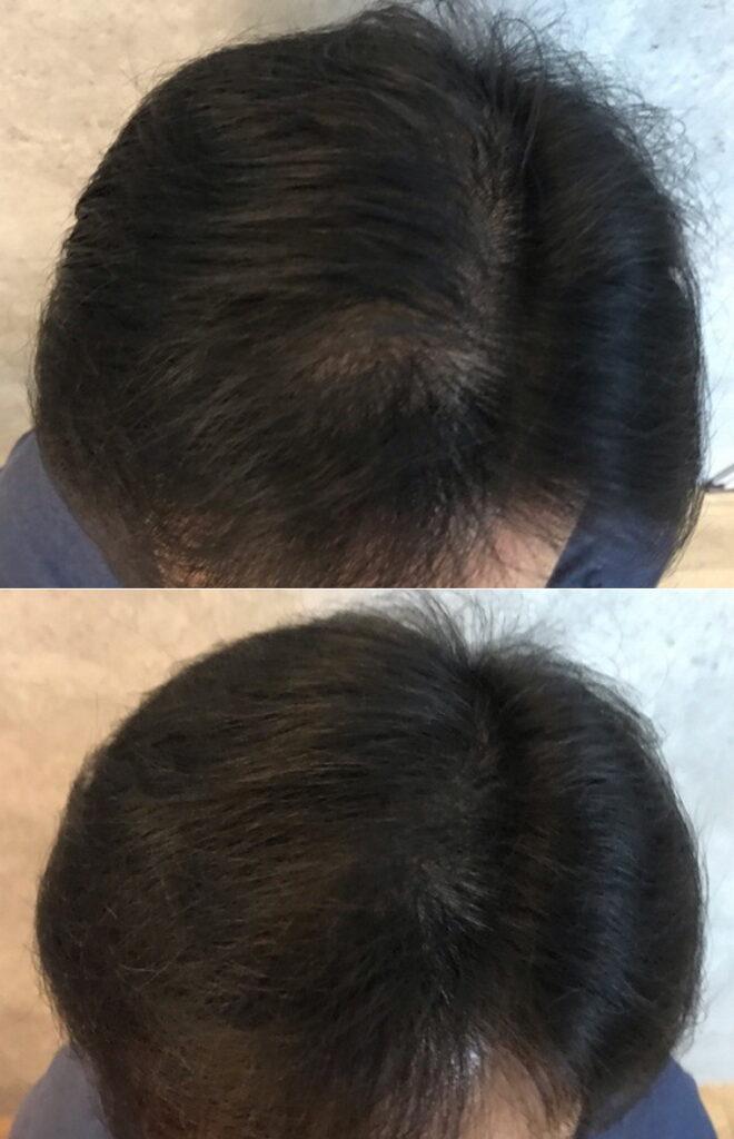 20210926_約2ヶ月後の頭髪状態_4週間後と比較